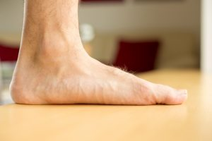 Flat Feet in Yorville and Morris, IL