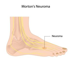 Neuromas in Yorville and Morris, IL